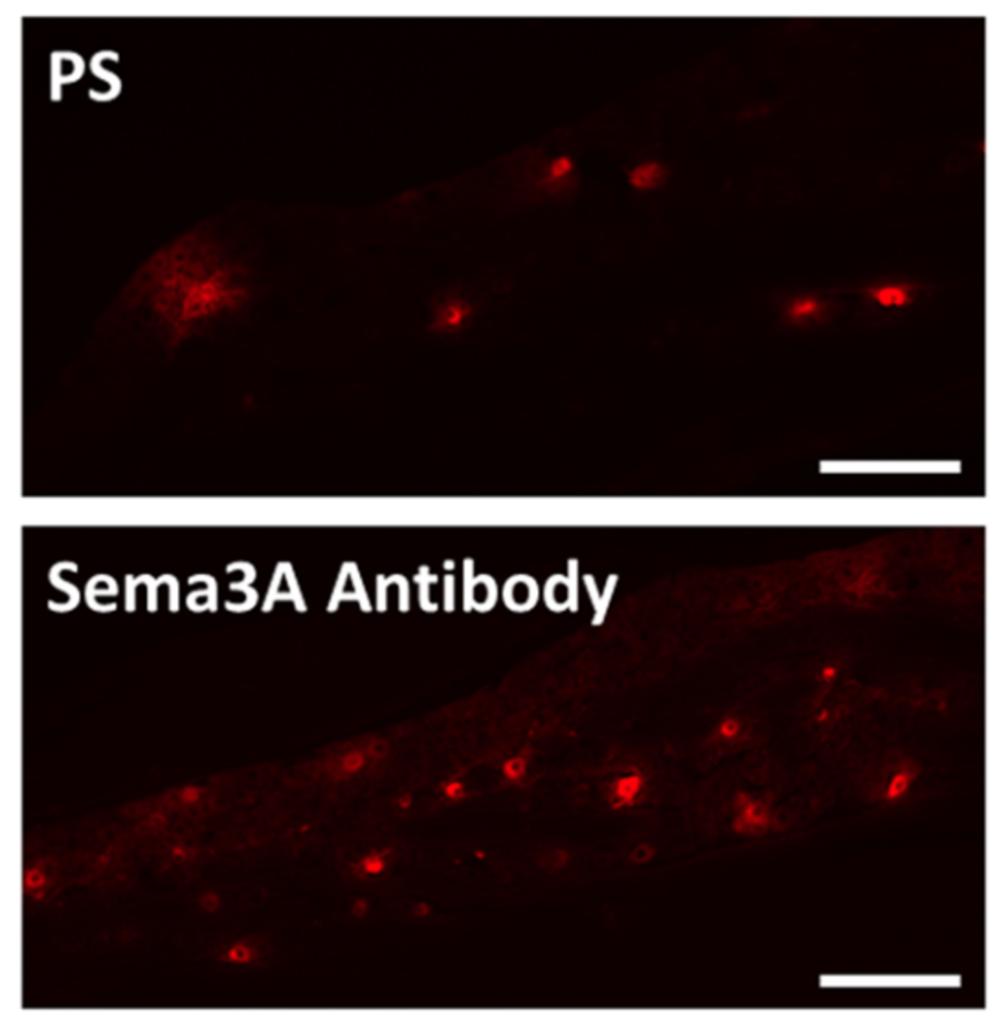 抗セマフォリン3A抗体を投与したマウスにおける神経細胞の比較1